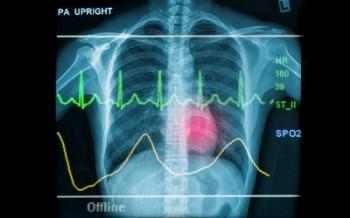 X-ray and EKG line overlaid. Image courtesy of Praisaeng at freedigitalphotos.net